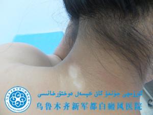 陈某/女性/遗传性/颈部白斑